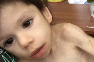 Mulher adota órfão de 7 anos que pesava apenas 4,5 kg