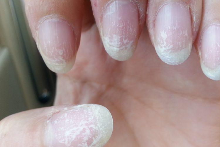 Unhas de gel podem provocar cancro de pele