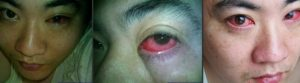 Um homem de 40 anos foi diagnosticado com cancro nos olhos e a causa é um alerta para todos nós.