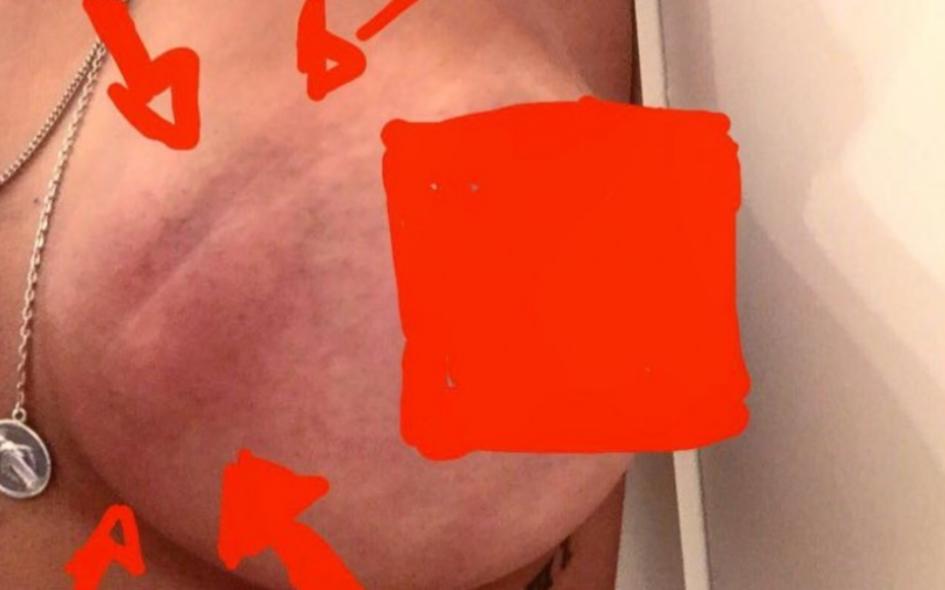 O tumor de Sofia Ribeiro