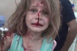 Vídeo mostra menina desesperada em busca do pai após bombardeamento na Síria