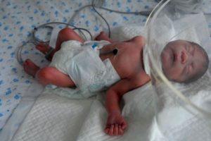 Bebé degolada encontrada em lixeira sobrevive contra todas as previsões