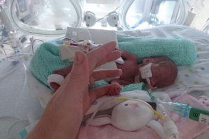 Bebé que nasceu com 23 semanas festeja primeiro aniversário