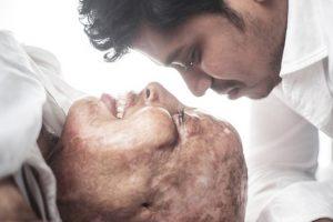 Mulher de rosto desfigurado após ataque com ácido encontra o amor no hospital