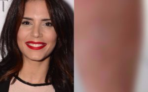 Olívia Ortiz mostra queimadura grave no corpo em fotos impressionantes