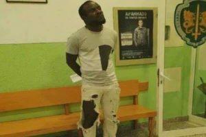 Sporting: Doumbia ficou assim após as agressões na Academia