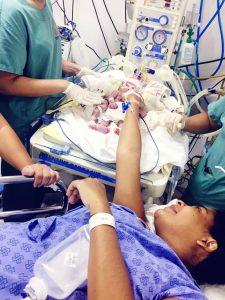 Siamesas unidas pelo peito morrem após paragem cardiorrespiratória