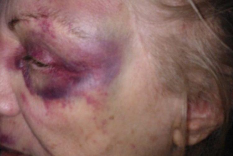 Crime – Câmara oculta capta agressões em lar de idosos