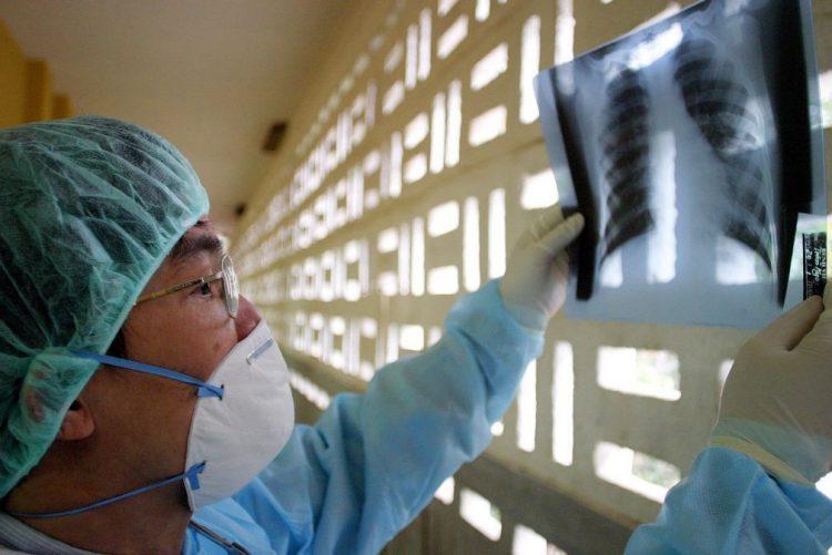 Tempo de sobrevivência no cancro do pulmão duplica com novos tratamentos