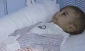 Mãe abandona recém-nascido sem braços nem pernas e criança torna-se símbolo de esperança