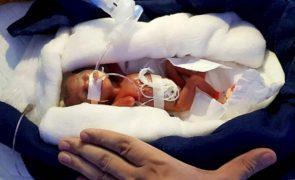 Bebé nasce com 28 semanas e 400 gramas e consegue sobreviver
