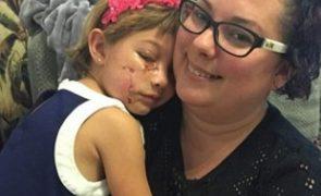 Selfies ajudam menina a recuperar do trauma causado por ataque de pitbull