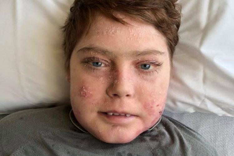 Criança Borboleta morreu aos 17 anos [vídeo]