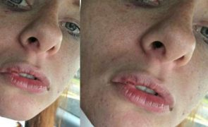 Adolescente autista brutalmente agredida por grupo de jovens [vídeo]