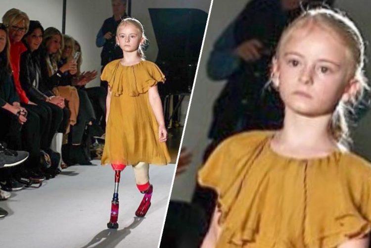 Marca de roupa escolhe menina amputada para desfilar nova coleção [vídeo]