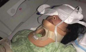 Jovem ferida com gravidade durante desafio igual ao de David Carreira [vídeo]