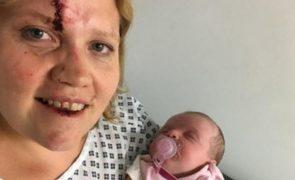 Mãe luta para recuperar filha recém-nascida e sofre vários ferimentos