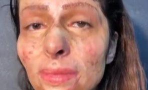 Jovem com o rosto desfigurado maquilha-se pela primeira vez [vídeos]