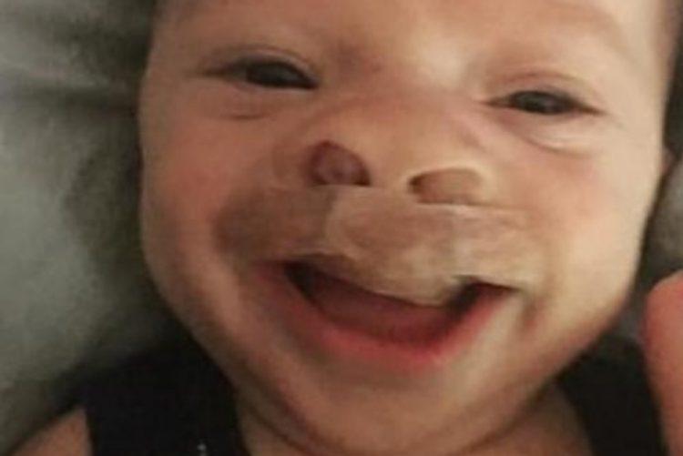 Bebé com malformação grave sofre transformação impressionante [vídeo]