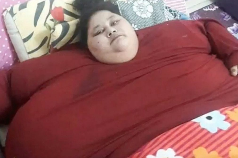 Mulher mais gorda do mundo perdeu 100 quilos