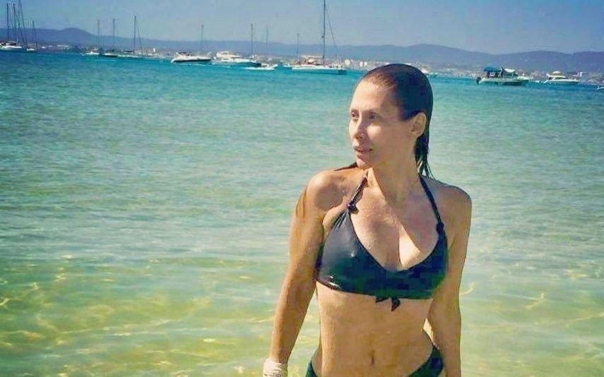 Sónia Brazão exibe corpo de sonho 9 anos após explosão que quase a matou