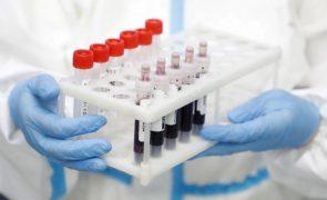Covid-19: Angola vai comparticipar nos custos dos testes de covid-19, entre sete e 98 euros