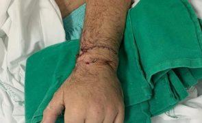 Hospital de Santo António reimplanta mão a paciente que a perdeu em rixa