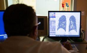 Covid-19: Pneumologistas alertam para importância do diagnóstico precoce na DPOC