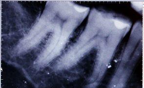 Estudo descobre caminho para a identificação precoce da cárie dentária nas crianças