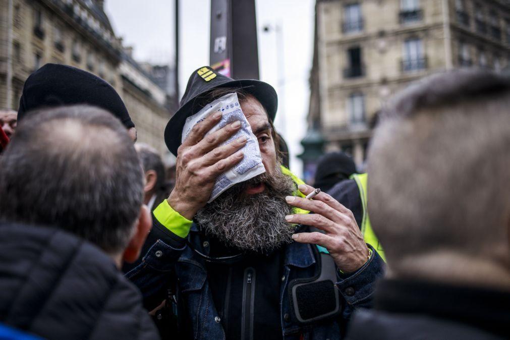 Polícias acusados por ferimentos contra 'colete amarelo' Jérôme Rodrigues