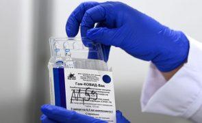 Covid-19: Alemanha vai negociar bilateralmente eventual compra de vacina russa