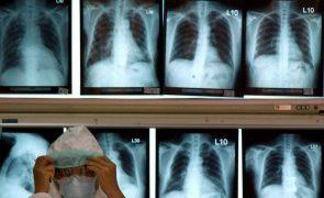 Universidade de Kyoto faz transplante pioneiro de pulmões a doente de covid-19