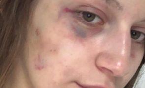 Jovem divulga vídeos a ser espancada pelo namorado após perdoar agressões