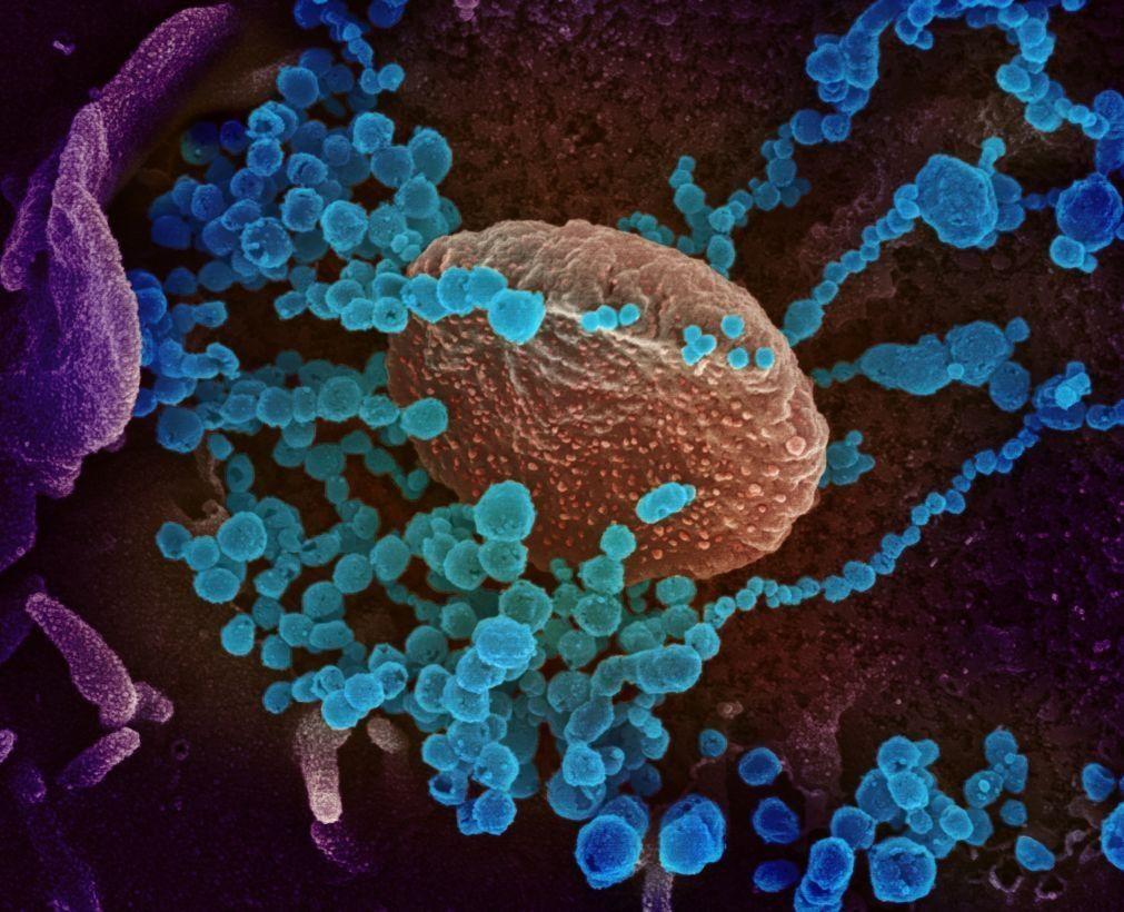 Investigação aponta possível caminho do SARS-CoV-2 para o cérebro