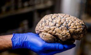 Universidade de Coimbra ganha 492 mil euros para estudar efeitos do 'stress' no cérebro