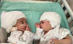 Gémeas siamesas já se conseguem ver após cirurgia de separação [vídeo]