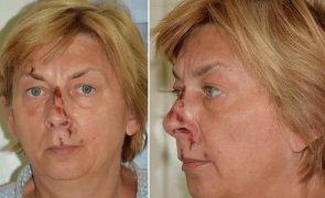 Mulher com amnésia encontrada em ilha na Croácia